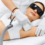 Jak przebiega zabieg depilacji laserowej ?